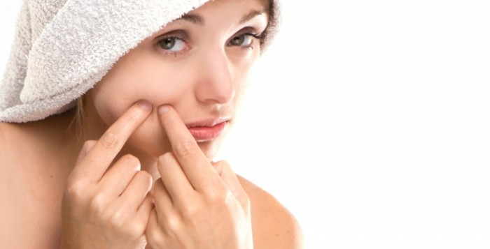 what is the quickest way to get rid of acne