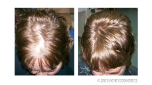 before-after-groei360-e1375108939648